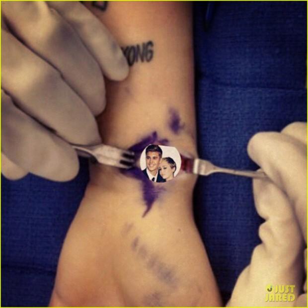miley-cyrus-hospitalized-for-wrist-injury-04