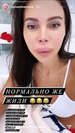 Слабонервным не смотреть: Оксана Самойлова стала жертвой косметолога - 3