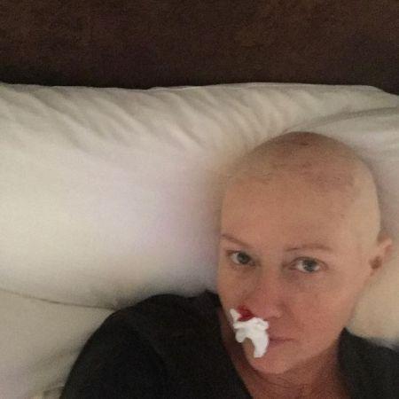 Шэннен Доэрти показала фанатам, как у нее выпали почти все волосы после химиотерапии - 2