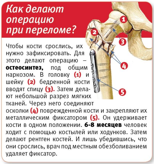 Как делают операцию при переломе?