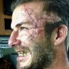 Дэвид Бекхэм показал шрам во все лицо
