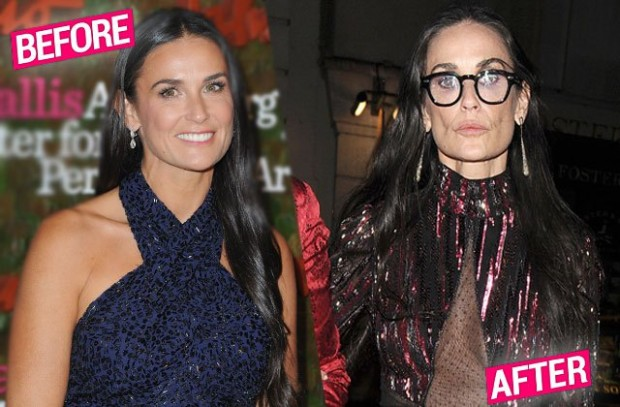 demi-moore-face-scary-skinny-weight-loss