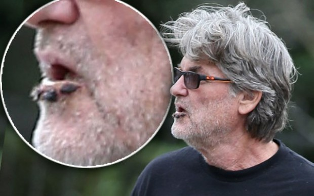 kurt-russell-lower-lip-sores-pp