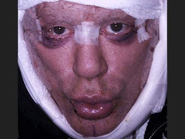 Микки Рурк после пластики лица